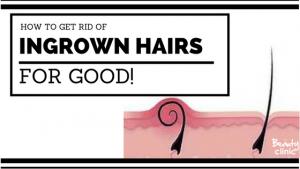 ingrown Hairs IPL hair removal permanent reduction