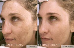 Ultraceuticals brightening accelerator mask pigmention peel
