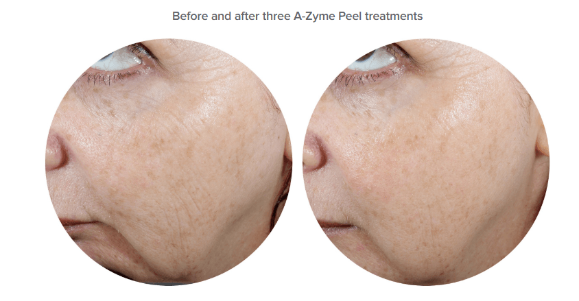 azyme peel vitamin A anto-ageing acne treatment Ultraceuticals